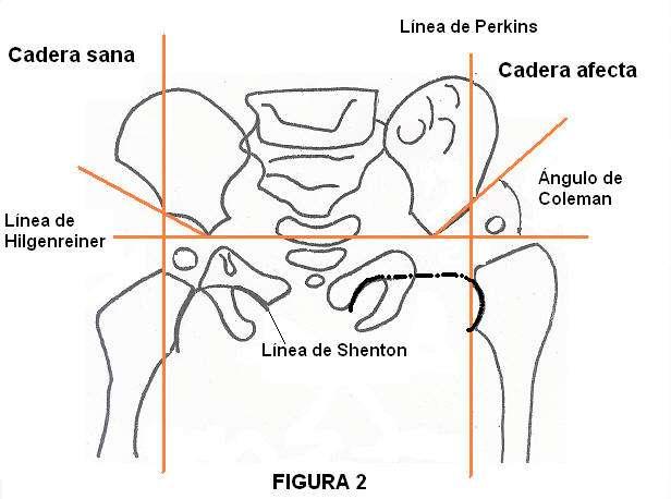Sexo y agenesia sacra